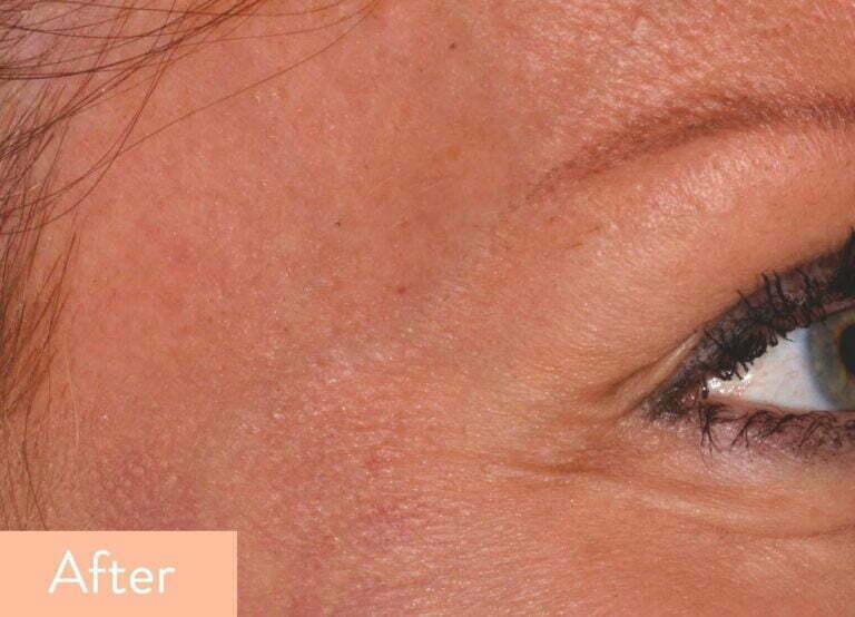 Botox Treatment | Ruma Salons | Beauty Salon Southampton